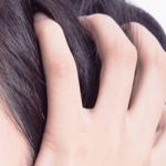 産後の頭皮のかゆみ